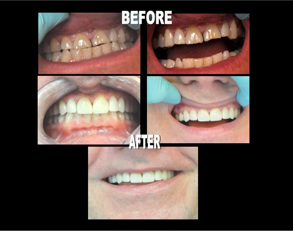 Veneer Before and Afters 32 Pearls Seattle Dentistry