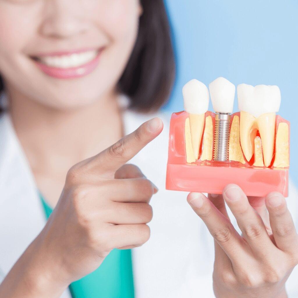 Restorative Dentistry Seattle Tacoma